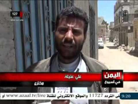 مواهب يمنية تبحث عن تنميتها