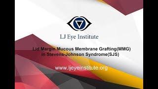 Lid margin mucous membrane grafting(MMG) in Stevens - Johnson Syndrome(SJS)