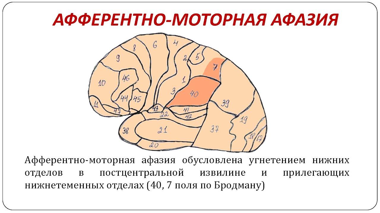 Схемы и таблицы по афазии