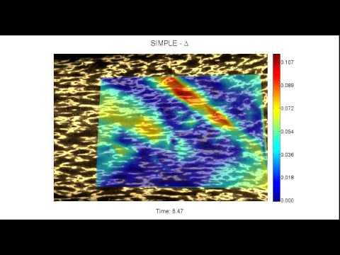 New algorithm identifies weak spots in body tissue prior to injury
