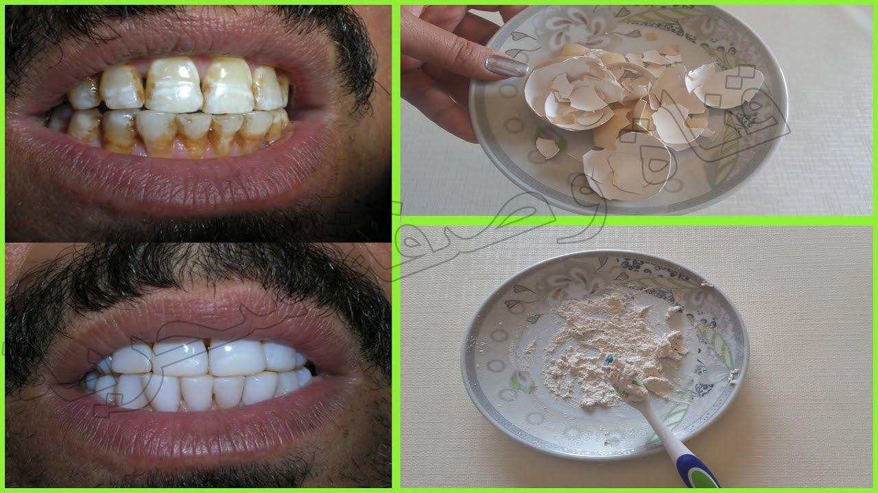 لن ترمي قشور البيض بعد استعمال هده الوصفة ل تبييض الاسنان في 3 دقائق وقسما بالله مجربة #وصفة_سحرية