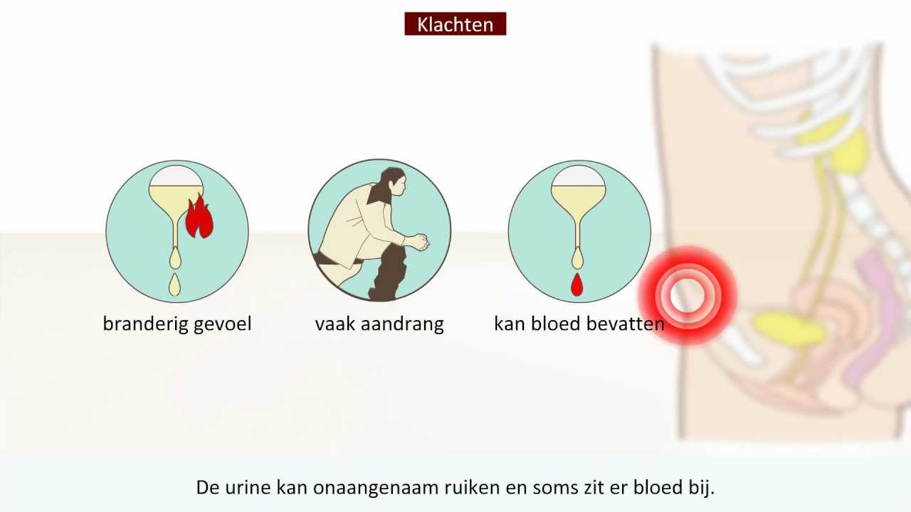wat is een nierbekkenontsteking