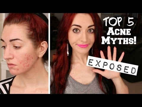 TOP 5 ACNE MYTHS EXPOSED! The Truth About Acne!