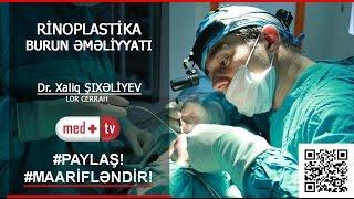 Download Lagu Rinoseptoplastika emeliyyati (canli emeliyyat) - Dr. Xaliq Sixaliyev LOR plastik cerrah MEDPLUS TV Gratis STAFABAND