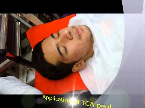 Acne control with Glycolic peel by Dr. Sheryll Ann Claravall