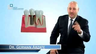 Dental Implants, a closer look explained by Dr German Arzate from Cancun Cosmetic Dentistry