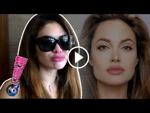 Demi Bibir Angelina Jolie, Niki Filler Bibir - Cumicam 28 Juli 2016