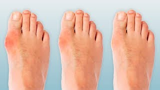 4 Ways to Ease Your Bunions Without Surgery