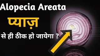 how to treat Alopecia areata naturally