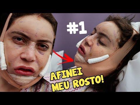 MINHA CIRURGIA PLÁSTICA NA COREIA DO SUL #1 - VIREI COREANA!  (V LINE surgery) thumbnail