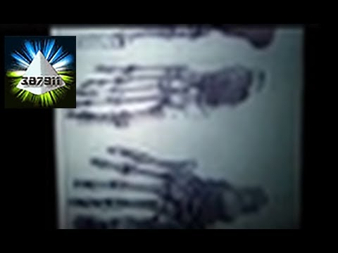 Lloyd Pye ★ Everything You Know Is Wrong Alien Starchild Skull DNA ♦ Ancient Alien Intervention