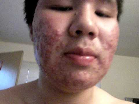 My First Day On Accutane