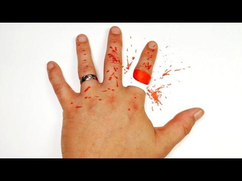 【錯覚】指を切り落とされたかのように見えるトリックアート!