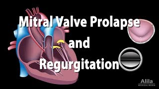 Mitral Valve Prolapse and Regurgitation, Animation