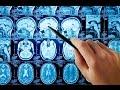 МРТ головного мозга ответы на самые частые вопросы mp3