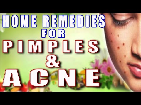 Home Remedies for Pimples & Acne