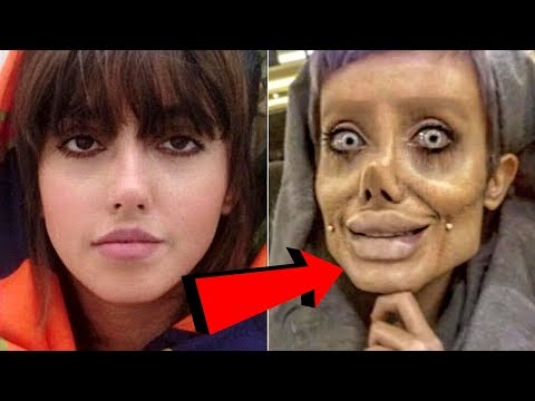 download song Women Gets 50 Surgeries To Look Like Angelina Jolie? - Sahar Tabar free