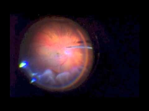 Retinal Detachment Repair with Vitrectomy