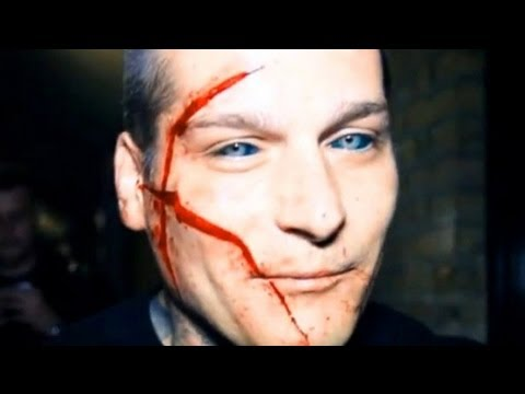 POLISH RAPPER POPEK GETS EYES TATTOOED AND FACE SCAR COMMENTARY   Furious Pete Talks