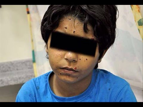 A.K Hotline-  Bahrain Two children wounded while planting bomb
