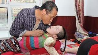 Parents Feed Cerebral Palsy Daughter Mouth To Mouth: EXTREME LOVE