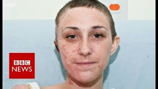 Inside the hospital treating acid attack scars - BBC News