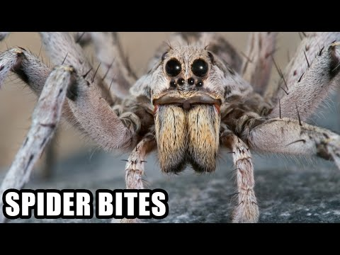 World's Worst Spider Bites; Brown Recluse, Hobo Spider - Plus, Spider Vs Snake!