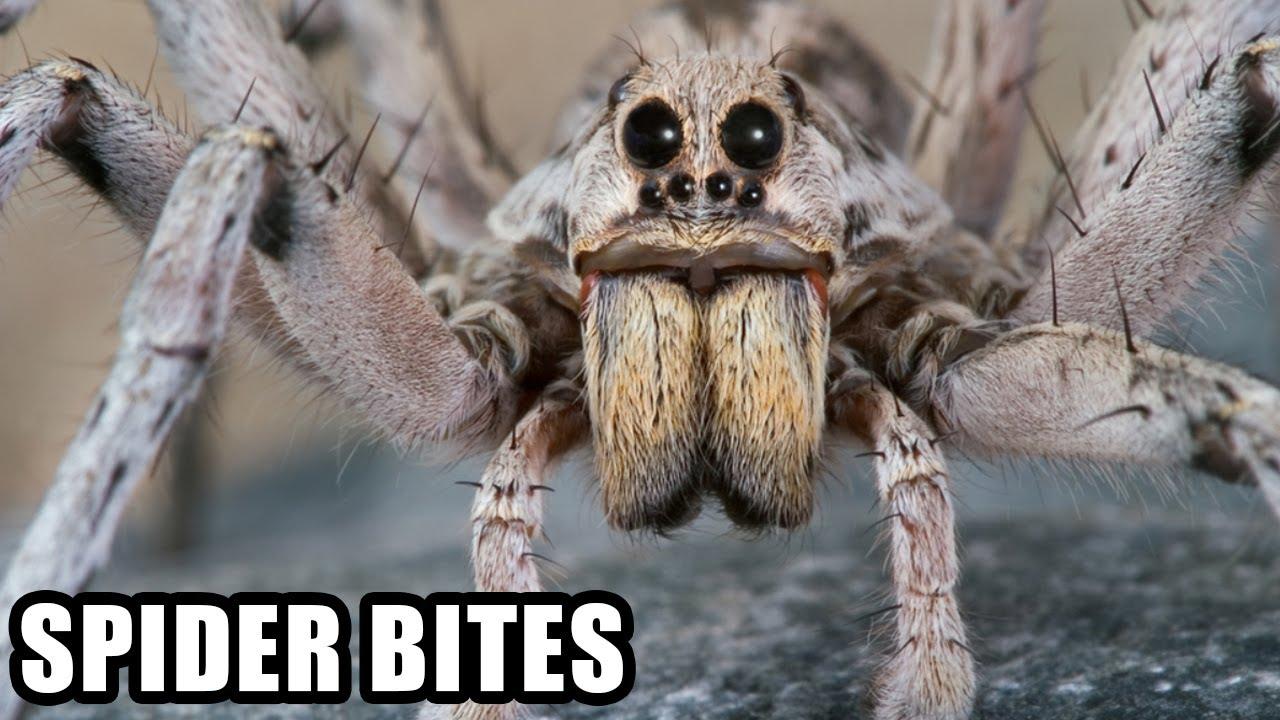 Showing pictures for  Worst Spider Bite EverWorst Snake Bites