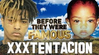 XxxTENTACION - Before They Were Famous - Jahseh Onfroy