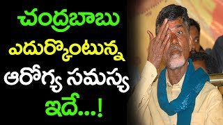 AP CM Chandrababu Naidu Health Problems | Chandrababu Naidu Health Secrets | Top Telugu Media