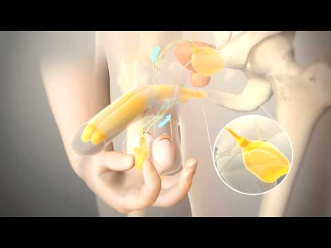 Penile Prosthesis Animation Sequence