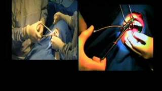 Extraction tooth #4 by Dr. Carl E Misch using the Physics Forceps