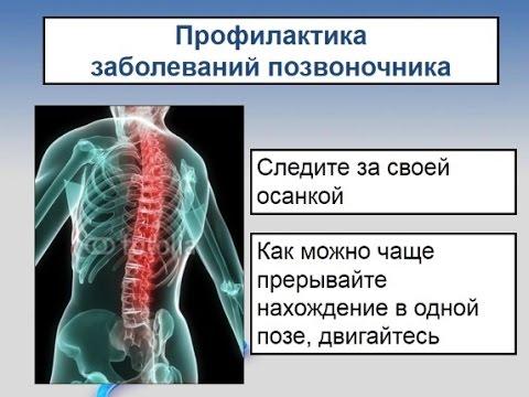 При воспалении остеохондроза может быть температура