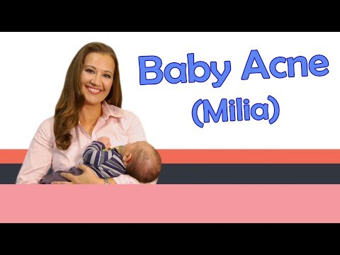 """Baby Acne (Milia)"" Baby Care with Jenni June (Episode 12)"