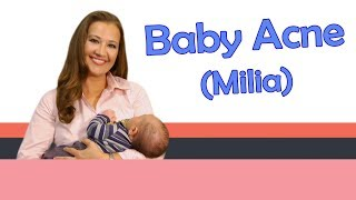 BABY ACNE (MILIA) | Baby Care with Jenni June