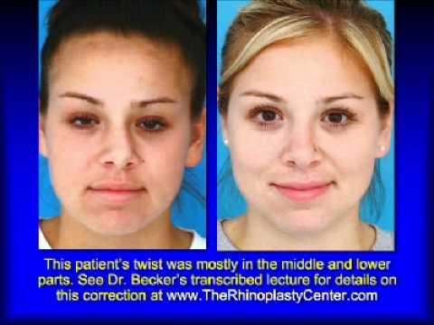 Broken Nose Rhinoplasty Nose by Rhinoplasty