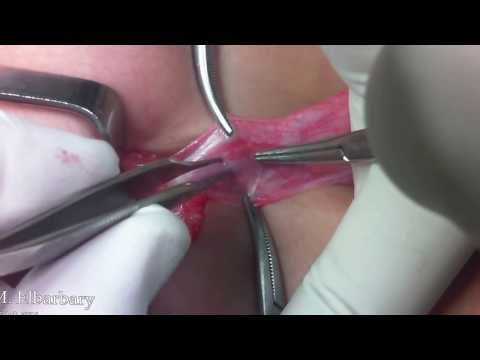 Pediatric Uro-surgery done by Dr. Mohamed Elbarbary Part I thumbnail