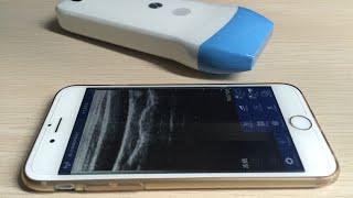 Wireless USG 128 Element Ultrasound Scan linear Probe MSLPU41 for Iphone