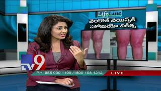 Varicose veins || Homeopathic treatment || Lifeline