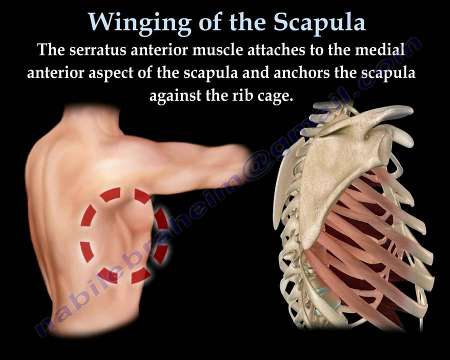 WINGING OF THE SCAPULA.,LONG THORACIC NERVE - Everything ...