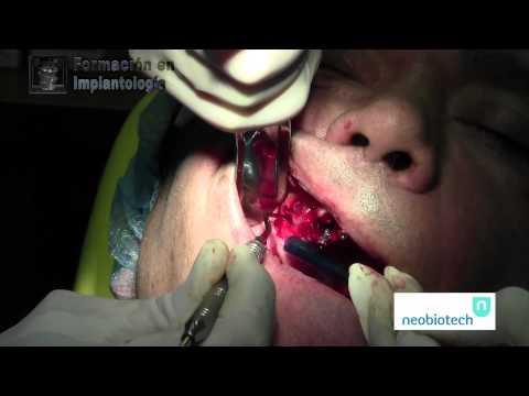 Formación en Implantología- Cirugías avanzadas con SLA KIT (neobiotech)