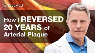 How to Reverse 20 years of Arterial Plaque: I Did: Ford Brewer MD MPH
