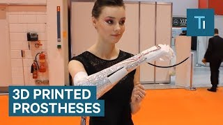 Open Bionics Is Creating Affordable And Stylish 3D Printed Protheses