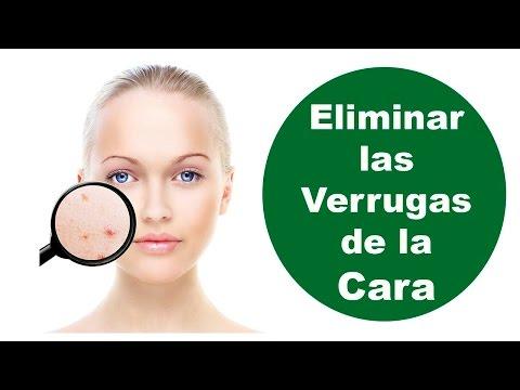 Tres Remedios Para Eliminar Verrugas