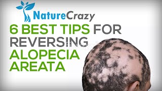 Alopecia Areata Hair Loss: Top 6 Tips For Reversing Alopecia Areata