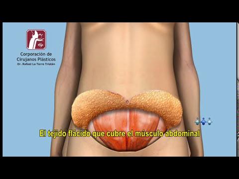 Abdominoplastia   Corporación de Cirujanos Plásticos   Lima - Perú