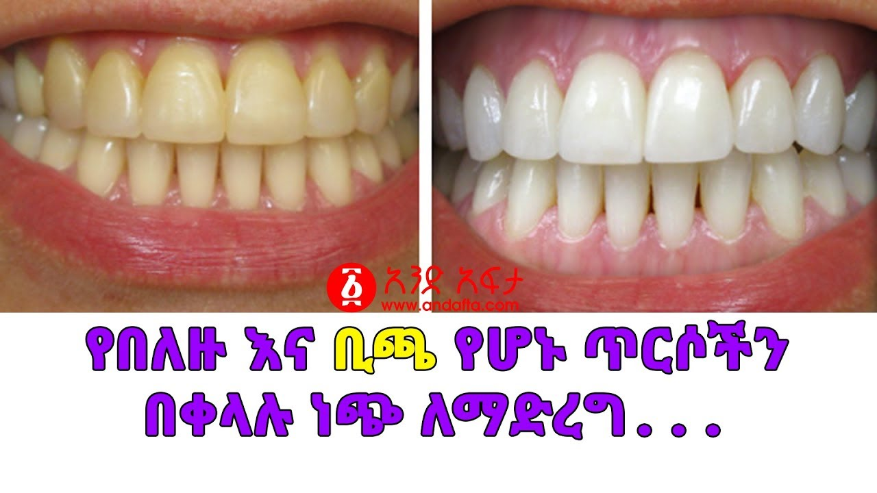 Ethiopi How To Clean A Yellow Teeth
