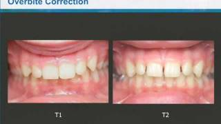 Dr. Clark Colville - Class II Correction with Invisalign and the Carriere Distalizer