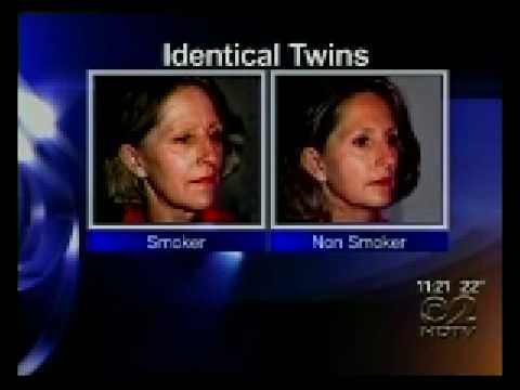 The Effects of Aging - Dr  Effects Of Smoking On Face