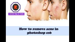 How to remove acne in photoshop cs6 | কিভাবে মুখের ব্রন দূর করবেন By ফটোশপ Cs6 |2017|